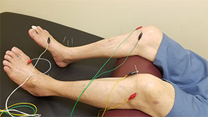 Acupuncture Treatments near Minneapolis